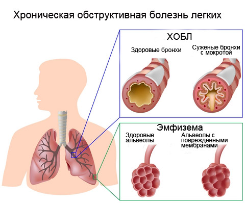 copd_1